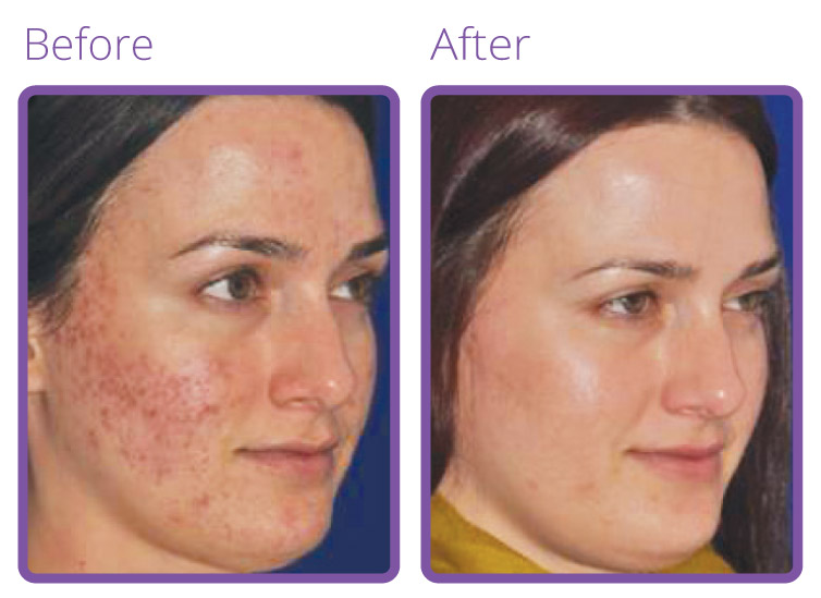 l-spa-micro-needling-before-after-2